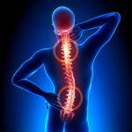 Chấn thương cột sống: Nguyên nhân, triệu chứng, cách điều trị
