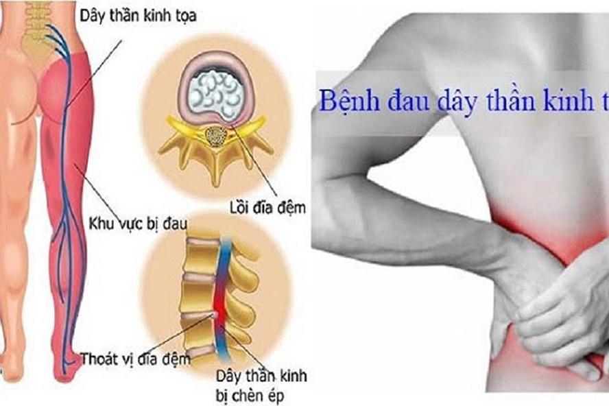 Đau thần kinh tọa gây đau từ mông xuống bắp chân