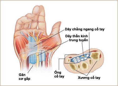 Nguyên nhân đau mắt cá cổ tay