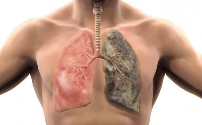 bệnh phổi gây đau lưng bên trái