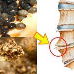 Cách chữa gai cột sống bằng hạt đu đủ đơn giản, hiệu quả