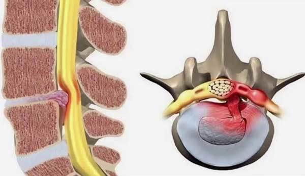 đau lưng bên trái