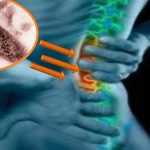 Lao cột sống có lây và có chữa được không? Cách điều trị