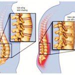 Viêm cột sống dính khớp có nguy hiểm không? Cách điều trị hiệu quả