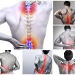 Đau cột sống thắt lưng và cổ: Nguyên nhân, triệu chứng, điều trị