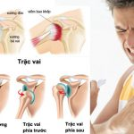 Đau khớp bả vai nguyên nhân và cách điều trị