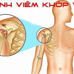 Viêm quanh khớp vai: Nguyên nhân và cách điều trị