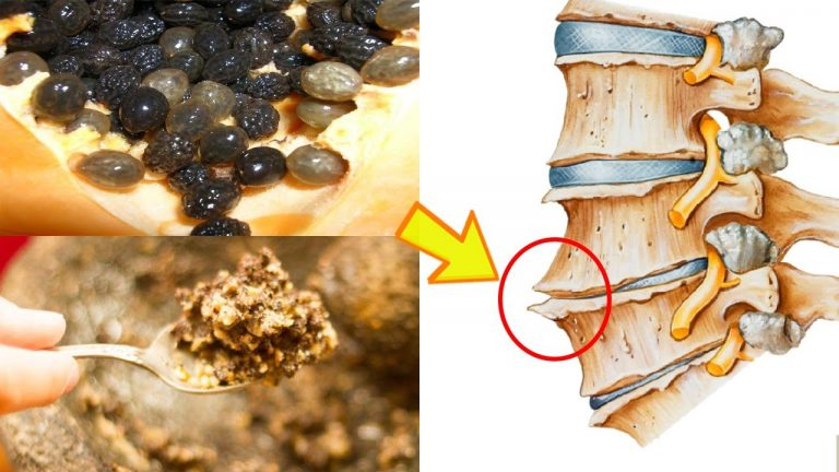 chữa gai cột sống bằng hạt đu đủ