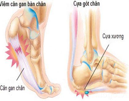 Bị đau gót chân trái phải là bệnh gì?