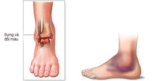 đau cổ chân