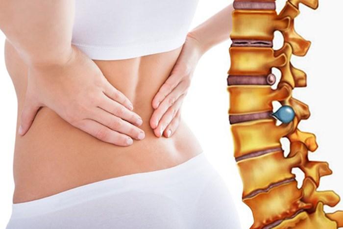 đau lưng ở phụ nữ