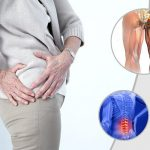 Hội chứng thắt lưng hông là gì?