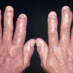 Bệnh viêm khớp vảy nến là gì? Triệu chứng và điều trị
