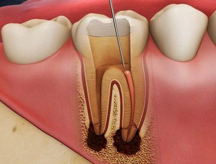Viêm khớp răng
