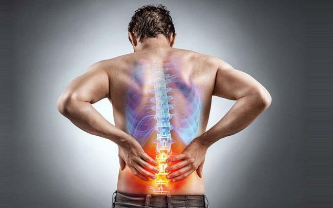 chữa đau lưng cơ năng