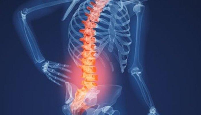 Đau lưng khi mang thai do bị bệnh xương khớp