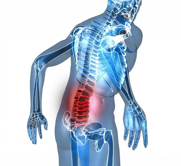 Thoát vị đĩa đêm gây đau lưng ở nam giới