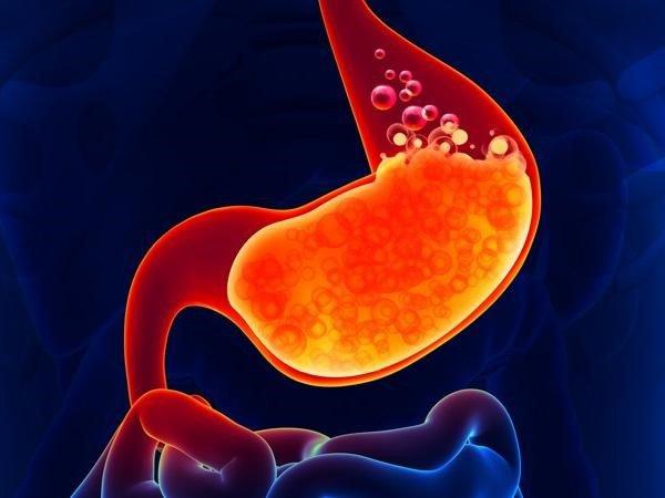 tăng tiết axit dạ dày