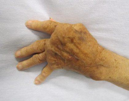 viêm khớp dạng thấp huyết thanh dương tính - 2