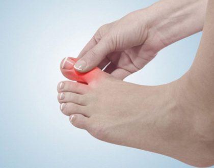 viêm khớp ngón chân