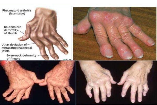 Cơ xương khớp - Bệnh gout