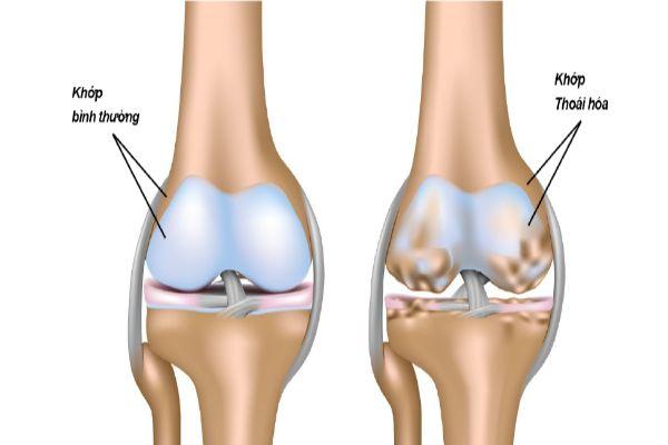 Cơ xương khớp - Thoái hóa khớp
