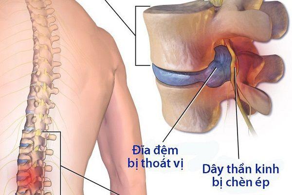 Cơ xương khớp - Thoái hóa cột sống thắt lưng hông