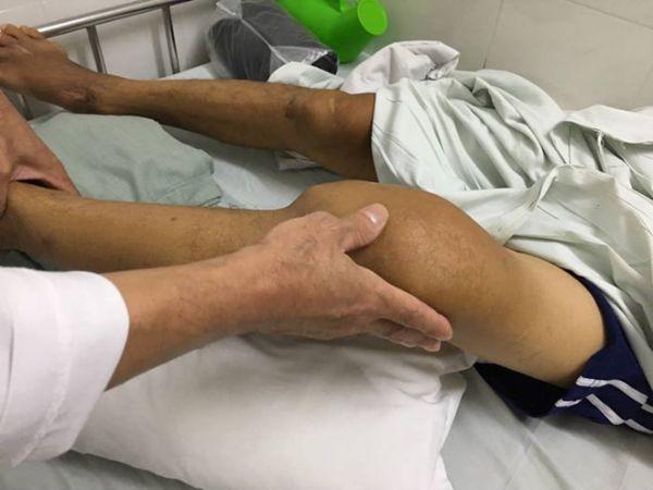 đau nhức xương khớp sau khi uống bia do bệnh gout