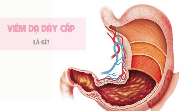 viem-da-day-cap
