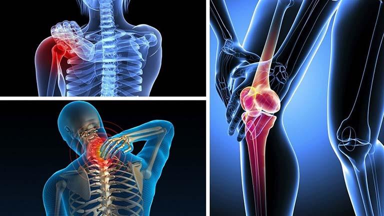 Xương Khớp PV có tác dụng hỗ trợ điều trị cac cơn đau ở nhiều vùng xương khớp khác nhau