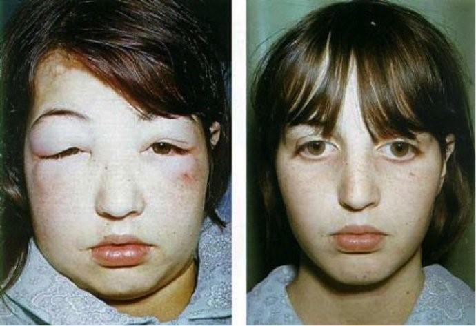 Trẻ bị phù do hội chứng thận hư