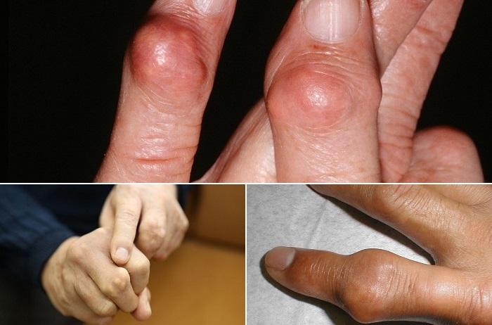 Bệnh gút ở tay có nguy hiểm không?