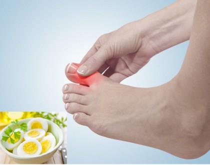 Người bệnh gút có được ăn trứng không