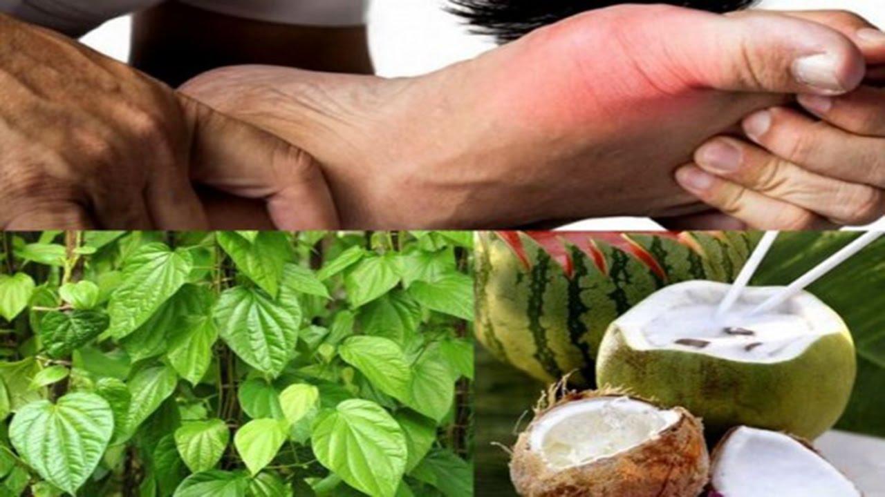 Hướng dẫn cách sử dụng lá trầu và nước dừa chữa bệnh gút