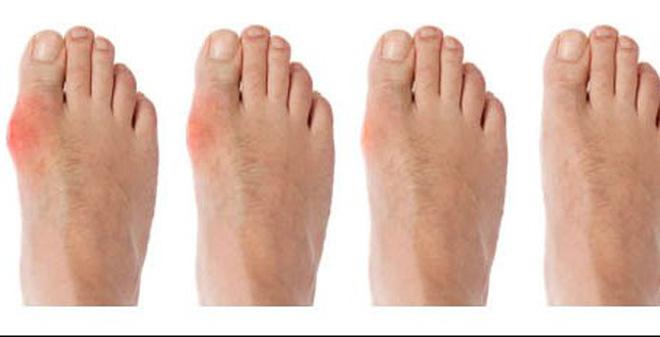 dấu hiệu bệnh gút ở chân