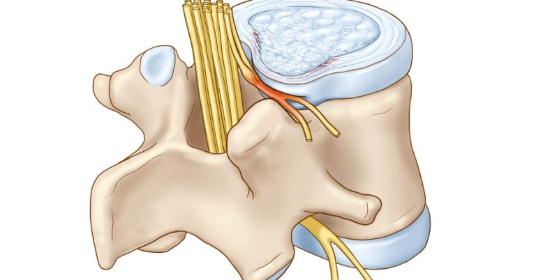 đau rễ thần kinh cột sống là gì