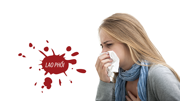 Ho ra máu có thể là biểu hiện của lao phổi