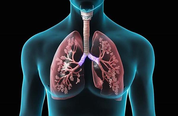 Lao phổi nguyên nhân gây hội chứng đông đặc phổi