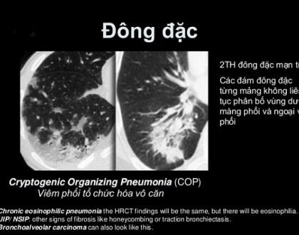 Hội chứng đông đặc phổi
