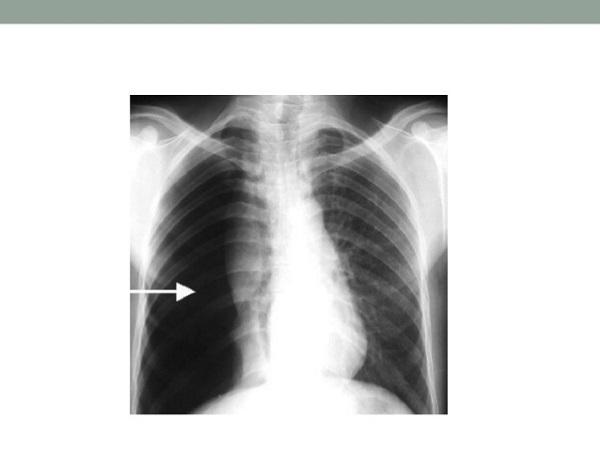 Hội chứng đông đặc phổi là gì