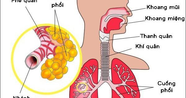 Khạc đờm ra máu tươi có thể do nhiễm trùng đường hô hấp