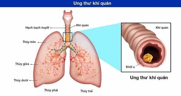 Khạc đờm ra máu có thể do ung thư khí quản