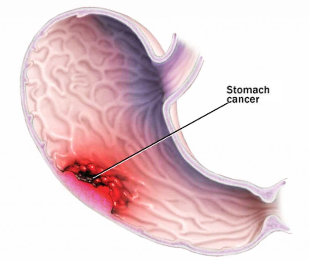 nguyên nhân thủng dạ dày