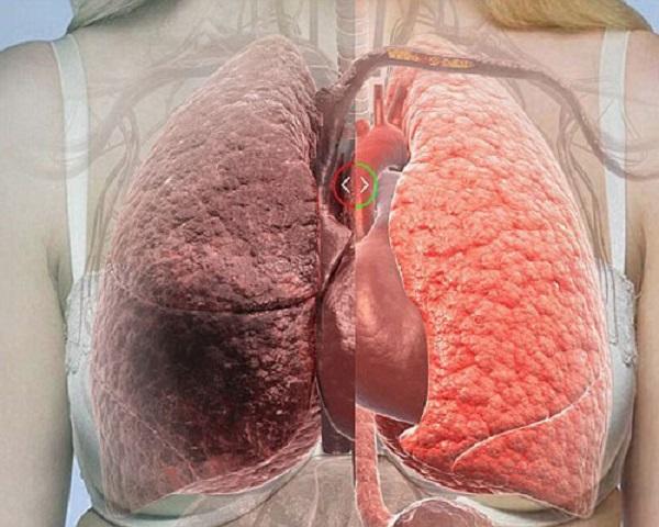 Bệnh nám phổi có nguy hiểm không