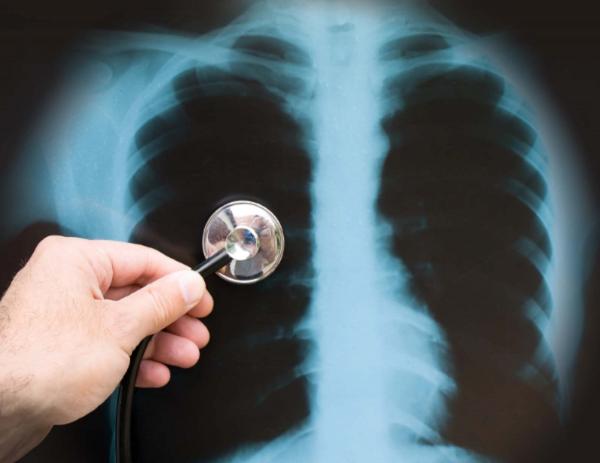 Lưu ý khi chụp X-quang phổi