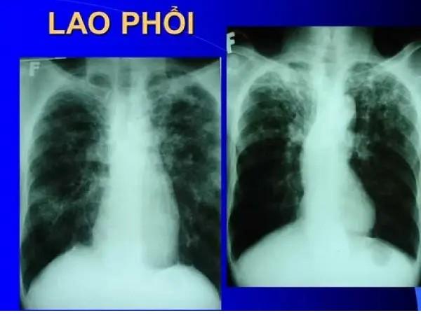 X quang lao phổi