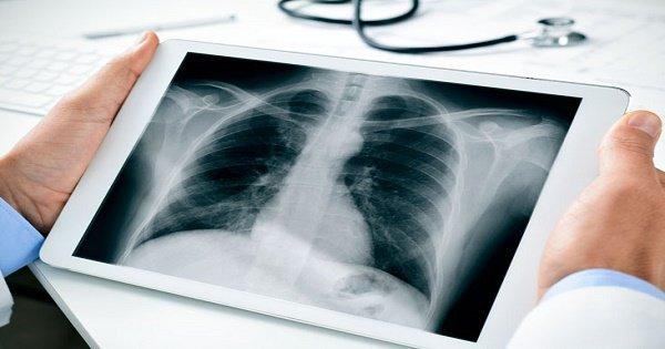 Chụp X quang phổi bình thường