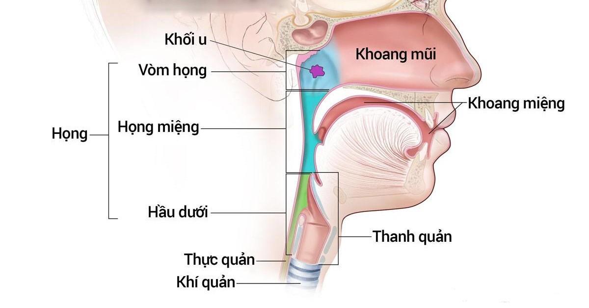 Phân biệt viêm họng hạt với ung thư vòm họng