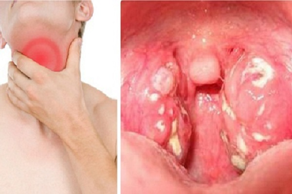 Nuốt nước bọt đau họng