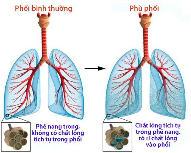 Nguyên nhân phù phổi cấp